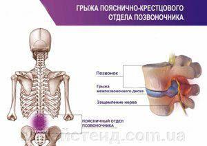грыжа пояснично-крестцового отдела позвоночника