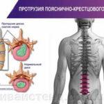 протрузия пояснично-крестцового отдела